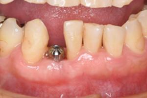 前歯のインプラント治療